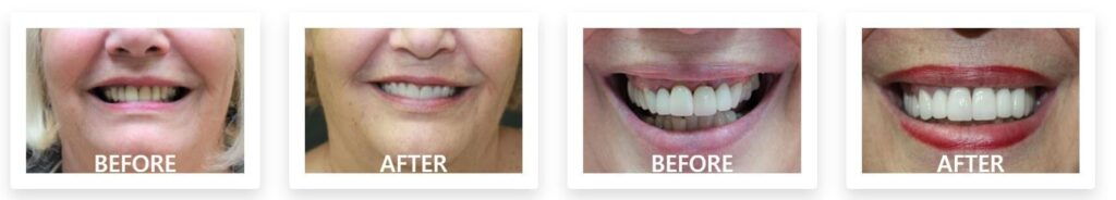 Patient before after transformation with Renaissance Family and Cosmetic Dentistry